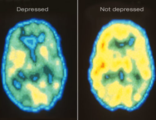 Brain Inflammation Tied to Depression and Suicidal Thoughts